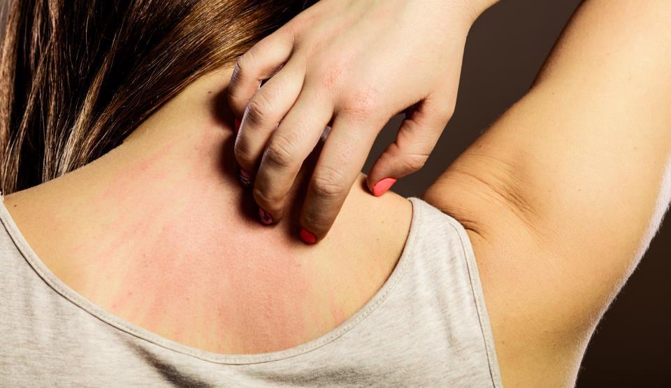 """""""Alchimia"""" vindecării: cercetătorii au transformat rănile deschise în piele"""