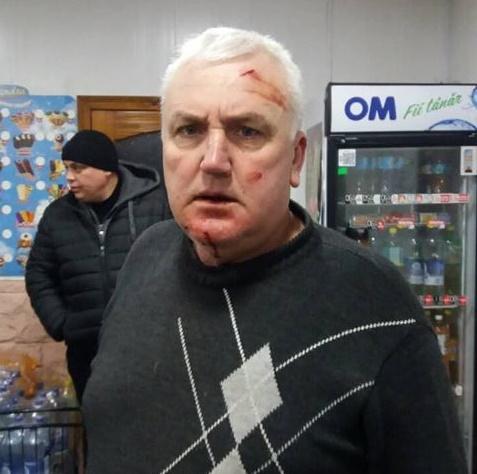 FOTO | Un consilier sătesc din Briceni, bătut de primar pentru că și-a apărat soția, îndemnată să ștampileze buletine de vot în favoarea PDM