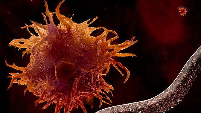 (Бес)полезные советы //  Причины возникновения онкологических заболеваний