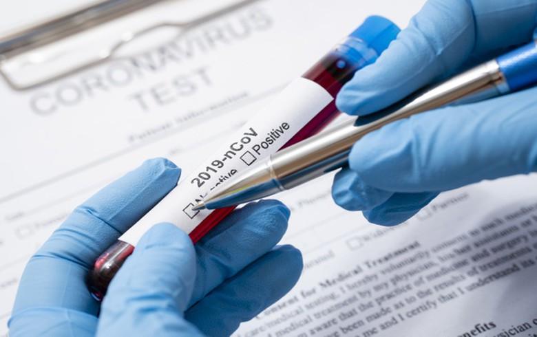 139 de cazuri noi de COVID-19. Bilanțul ajunge la 4.867 de îmbolnăviri