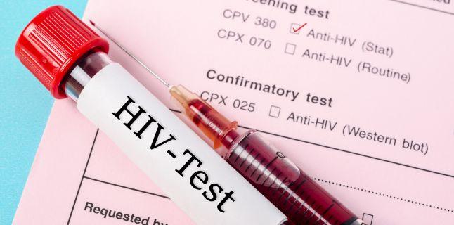 """Cazul primului pacient din lume vindecat de SIDA. Expert: """"Nu știm dacă virusul nu se va reactiva"""""""